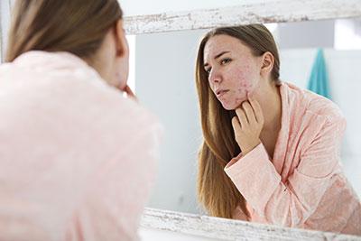 woman_acne_hirsutism_sm.jpg